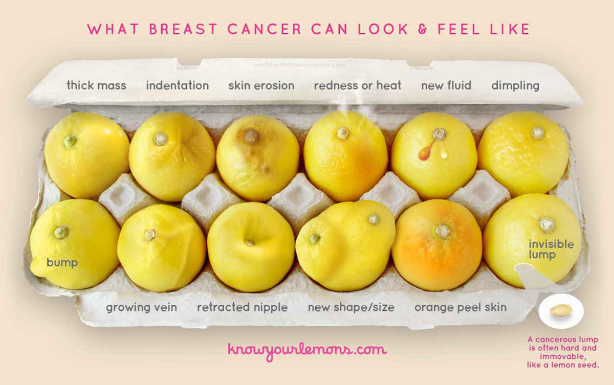 This Photo Helps Women Detect Breast Cancer