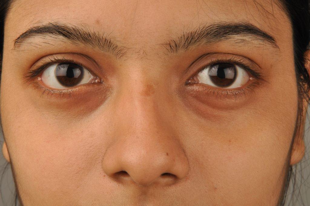 How to Reduce Puffy Eyes + Dark Circles | Viva La Vibes