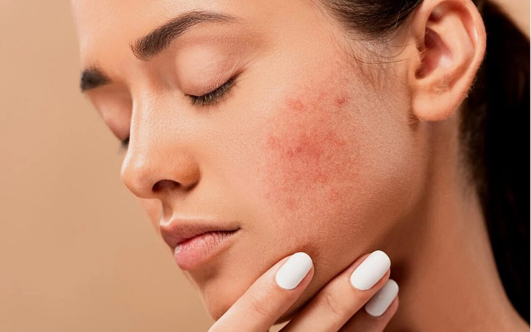 11 Remarkable Natural Skincare Remedies for Acne